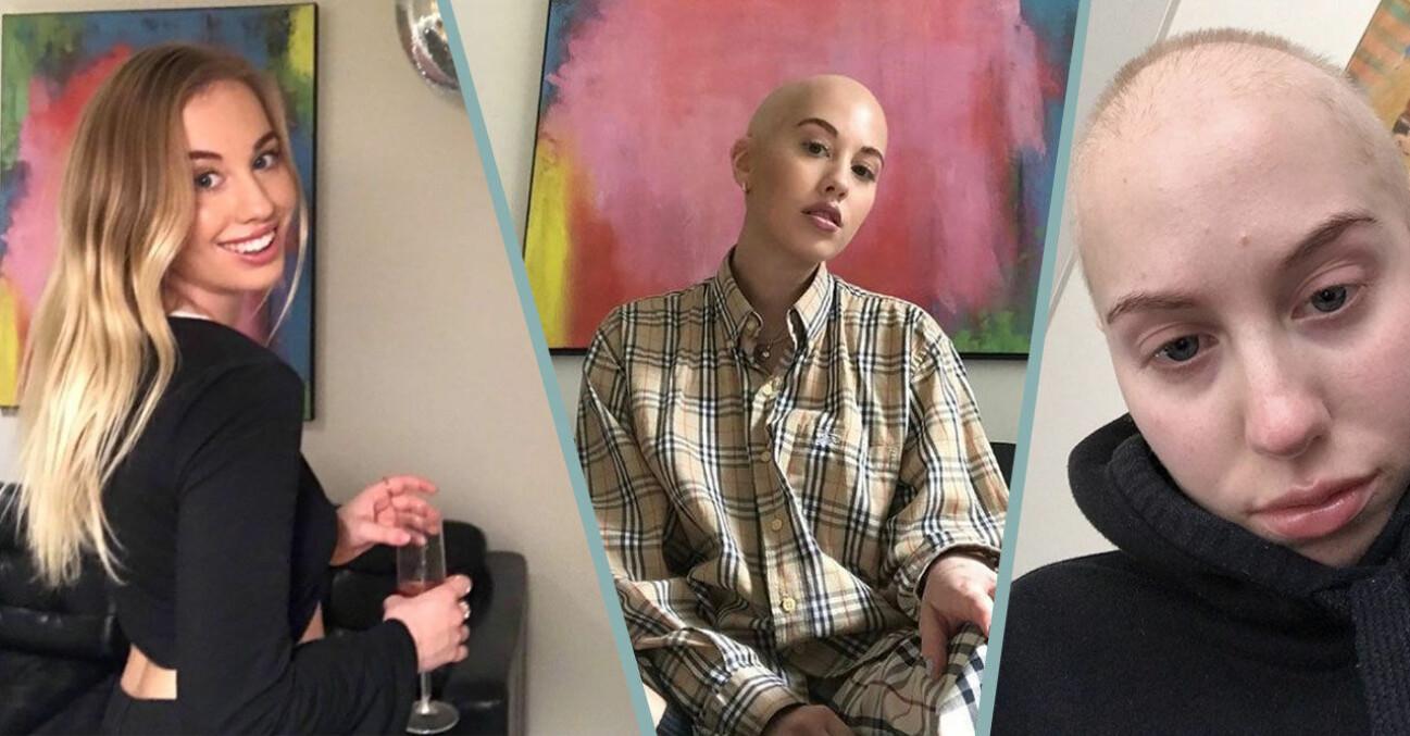 Lovisa Ström fick en tumör
